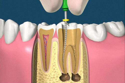 Konzervativna stomatologija i endodoncija 2